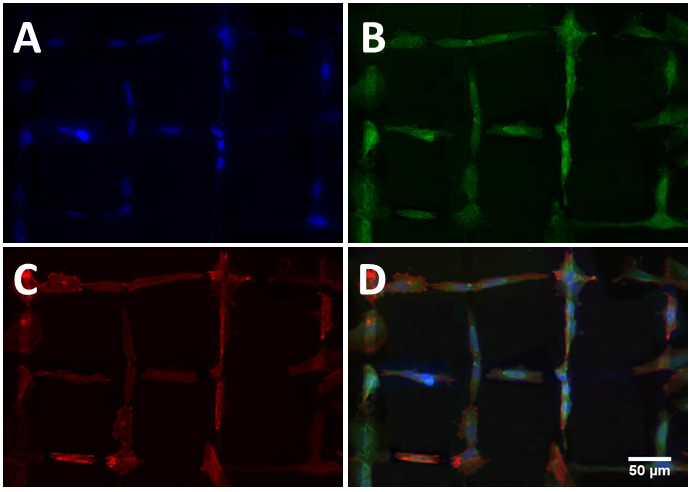 Fig. 1 Different immunostaining images of neurons grown on UNCD with patterned surface modification (D is an overlay of A-C). The neurons follow the hydrophilic paths (oxygen terminated) and avoid the hydrophobic regions (fluorine terminated).